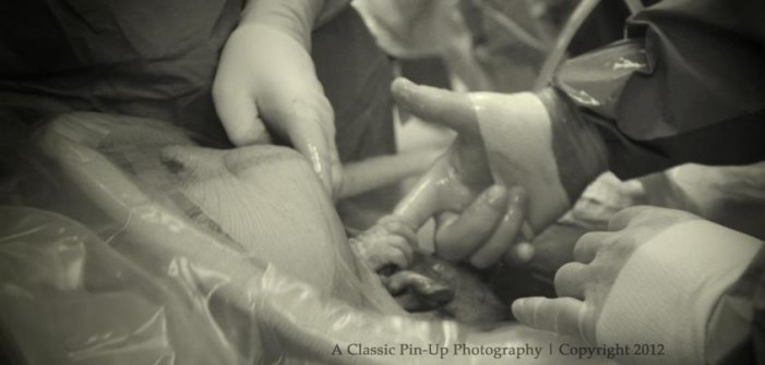 Photo of Baby Grasping Doctor's Finger During C-Section Goes Viral