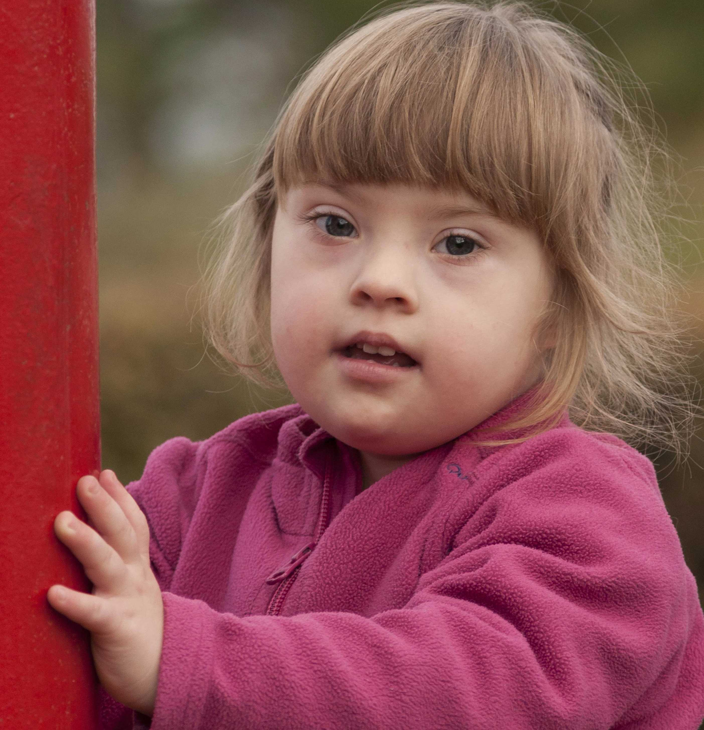 Down Syndrome Child-compressed