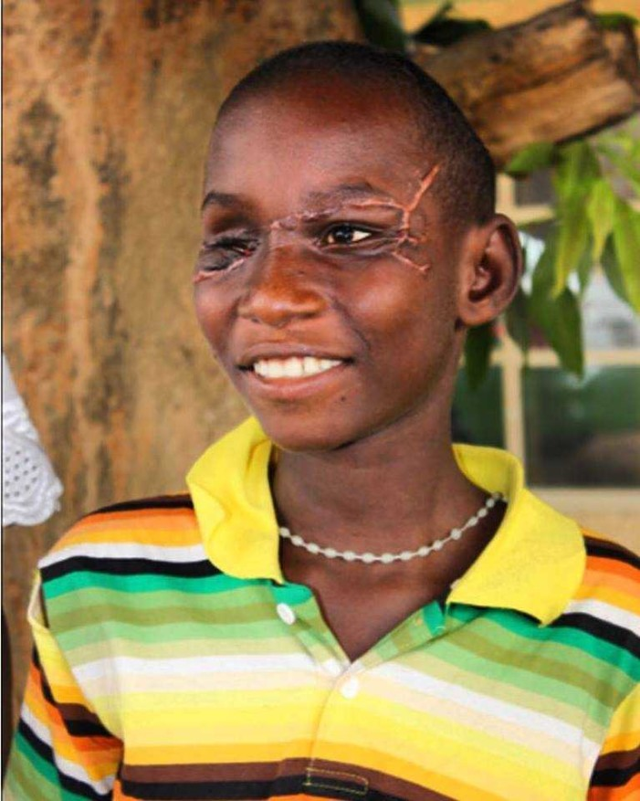 Nigerian Boy Forgives Muslim Attackers Who Tried to Kill Him
