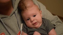 Baby Born With Brain Outside Skull Defies Odds After Parents Back Out of Abortion