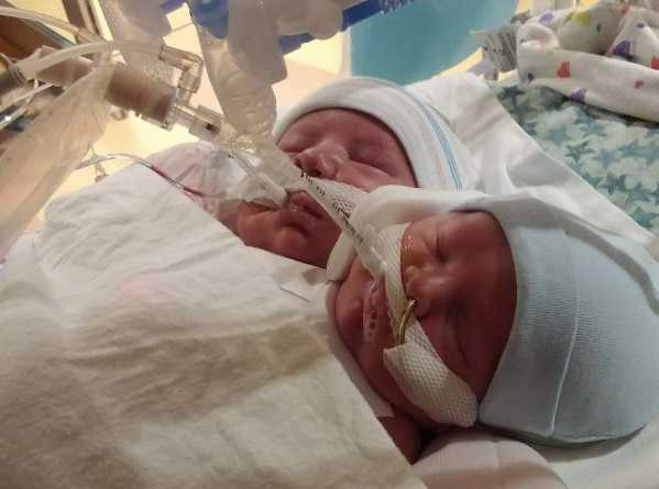 North Carolina Couple Refuses to Abort Conjoined Twins: 'To Us, It Wasn't an Option'