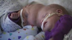Conjoined Twins Who Survived One of World's Rarest Surgeries Preparing to Go Home