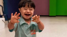 Controversial Down Syndrome Test Introduced in Wales