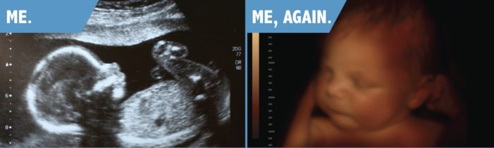 Right to Life Group Sues Bus Company for Declining Advertisement Showing Personhood of Unborn