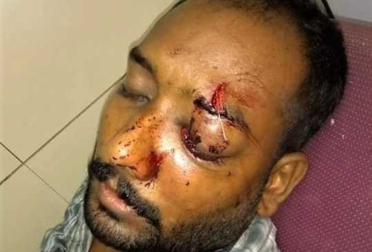 Pakistani Christian Loses Sight in One Eye in Attack by Muslim Neighbors