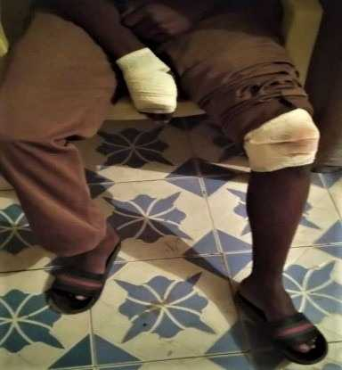 Muslim Police Officers, Others Beat and Arrest Christian in Kenya
